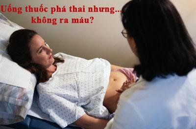 Tại sao uống thuốc phá thai nhưng không ra máu?
